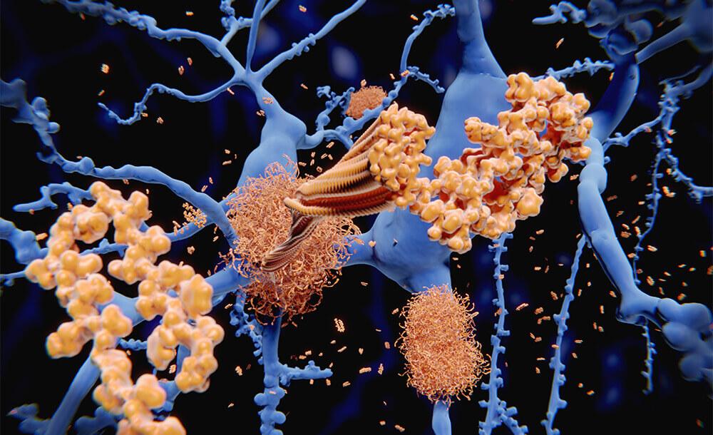 排出されないアミロイドβが脳細胞にダメージをあたえる。認知症のリスクが高くなる。